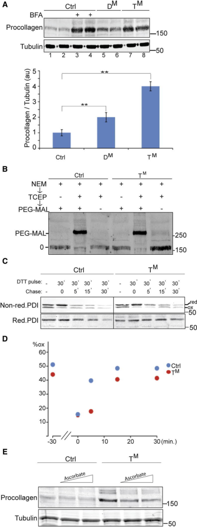 An Ascorbic Acid-Responsive Defect in Type I Procollagen Maturation in Mutant Cells(A) Immunoblot of type I procollagen in lysates of MEFs of the indicated genotypes. Where noted, cells were exposed to brefeldin A (BFA, 2 μg/mL) for 3 hr before harvest to inhibit export of procollagen from the ER. The anti-Tubulin blot (lower panel) serves a loading control. Shown is a representative experiment performed in duplicate. The bar diagram below the immunoblot shows the mean ± SEM of the ratio of the procollagen to tubulin signal expressed in arbitrary units (au) from three such experiments (n = 3, ∗∗p < 0.01).(B) Immunoblot of procollagen from BFA-treated MEFs. Where indicated, disulfides in the sample were reduced with TCEP before exposure to the thiol-modifying agent PEG-MAL-2000. The modified (PEG-MAL) and unmodified (0) species are marked.(C) Nonreducing and reducing immunoblot of protein disulfide isomerase (PDI) following exposure of MEFs to the reducing agent dithiothreitol (DTT pulse) and a washout for the indicated time (chase). The migration of reduced and oxidized forms of PDI is noted.(D) Plot of oxidized PDI as percentage of the total from the experiment shown in (C). Note the subtlety of the kinetic defect in PDI reoxidation following DTT washout in the mutant cells.(E) Procollagen immunoblot, as in (A). Where indicated, the culture media was supplemented with ascorbate (to a concentration of 50 μM or 100 μM).