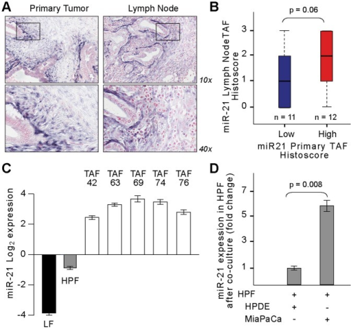 PDAC tumor cells induce tumor-associated fibroblasts (TAFs) to express microRNA-21.(A) Representative images of miR-21 in situ hybridization (ISH) on a patient-matched primary tumor and lymph node metastasis reveals high peritumoral expression of miR-21 in the stroma, decreasing in a radial gradient away from the tumor cells. (B) From miR-21 ISH on 23 patient-matched samples, miR-21 expression in the primary TAFs correlates with that of TAFs found in lymph node metastases (p = 0.06). miR-21 expression was dichotomized into high (n = 12) vs. low (n = 11) based on the median intensity level. (C) miR-21 expression in early-passage (p2) primary TAFs derived from resected human PDACs is elevated >8 times that of human pancreas fibroblasts (HPF) from noncancerous tissue. (D) Co-culture of HPFs with MiaPaCa tumor cells reveals a >5 fold increase in miR-21 in HPFs versus co-culture with normal human ductal epithelial (HPDE) cells. miR-21 expression was normalized to RNU6B. Error bars ± SD. Data are representative of 3 independent experiments.
