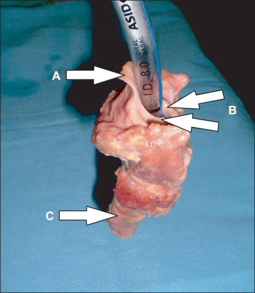The Larynx Was Intubated With An Endotracheal Tube 80 Mm