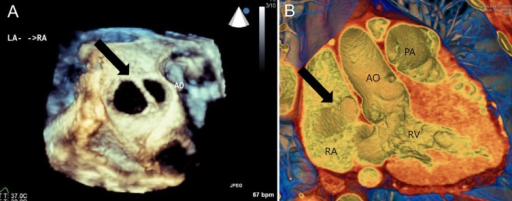 The same patient's three-dimensional reconstructed en-face images showing two atrial septal defects (black arrow) from transesophageal echocardiography (A) and cardiac computed tomography (B). AO, aorta; PA, pulmonary artery; RA, right atrium; LA, left atrium; RV, right ventricle.
