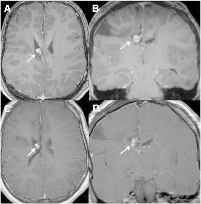Magnetic resonance imaging of subependymal giant cell astrocytoma (SEGA) before and after treatment with everolimus. Pretreatment (A) axial and (B) coronal and (C) axial and (D) coronal 3D-T1-postcontrast-weighted images after 5-month treatment with everolimus show a mild reduction in size of the SEGA.