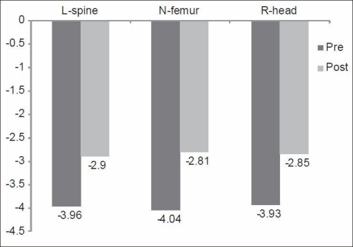 "Mean values of ""T-score"" of the L-spine, N-femur, and R-head of patients before and after weight-bearing exercise program (Group-I). L-spine: Lumbar spine; N-femur: Neck of femur; R-head: Right distal radial head. P = 0.02, 0.00, 0.01 of the L-spine, N-femur and R-head respectively"