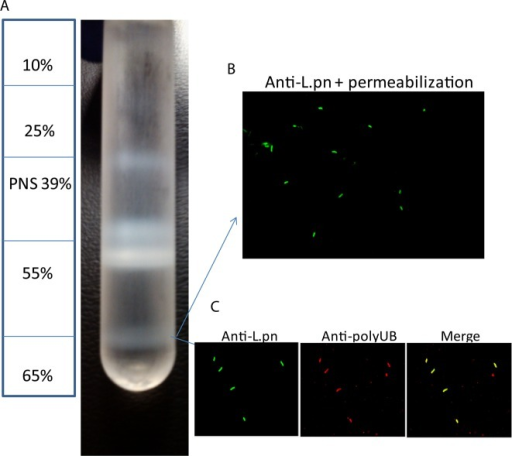 LCV purification usinga discontinuous sucrose gradient. U937 macrophageswere infected with WT L. pneumophila or the isogenic ankB strain at an MOI of 50 for 30 min washed and the infectionproceeded for 4 h. Cells were lysed through dounce homogenization,and the postnuclear supernatant was used to isolate LCVs through densityultracentrifugation on a discontinuous sucrose gradient. (A) Diagramof the sucrose gradient showing the isolated LCVs at 55–65%interface and (B) confocal microscopy of isolated LCVs labeled withmouse anti-L. pneumophila following vacuole membranepermeabilization. (C) Confocal microscopy of isolated LCVs labeledwith rabbit anti-L. pneumophila antiserum and mouseantipolyubiquitin antibodies.