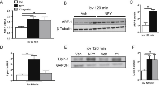 CNS NPY and Y1 receptor signaling promote expression of ARF-1 and lipin-1. The levels of mRNA and protein of ARF-1 and lipin-1, two key regulatory proteins involved in PL remodeling, were assessed from livers of 4-h fasted lean rats (n = 5–7/group) isolated 60 or 120 min after icv treatment with NPY (black bars), Y1 receptor agonist (gray bars) or Veh (white bars). Relative mRNA levels for liver ARF-1 (A) and lipin-1 (D) were obtained by quantitative RT-PCR. Individual mRNA levels for the protein of interest were first normalized to a non-regulated reference RNA, RPL13A, and then normalized to the Veh group for comparative analysis. Protein extracts prepared from livers of 4-h fasted lean rats isolated 120 min after icv injection of NPY or Y1 receptor agonist or Veh were immunoblotted to detect levels of ARF-1 (B and C) and lipin-1 (E and F). Images of Western blots [representative blots shown for ARF-1 (B) and Lipin-1 (E)] were analyzed by densitometry and data shown relative to Veh levels after normalization to loading controls, β-Tubulin or GAPDH. Data are presented as mean ± SEM and were analyzed by Student's t-test (unpaired, two-tailed); *indicates a significant difference (p < 0.05) between icv treatment and Veh.