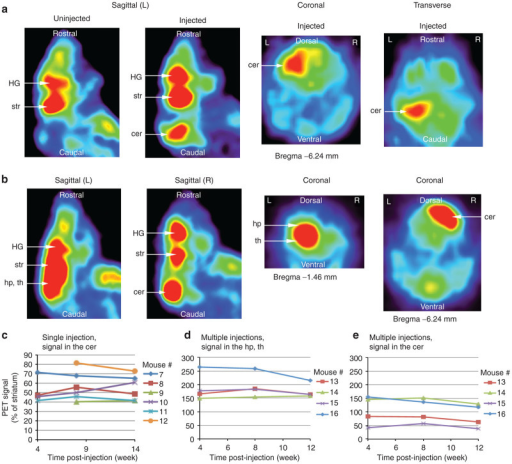 Serial positron emission tomography (PET) imaging following intraparenchymal injection of AAV1.D2R80A in adult mice. (a) Adult mice (n = 6) were coinjected unilaterally with equivalent titers (1.5 × 1010 GC) of AAV1.D2R80A and AAV1.GFP into the cerebellum of the left hemisphere. (b) A second group of mice (n = 4) was given multiple injections of AAV1.D2R80A and AAV1.GFP (2 × 1010 GC per site) into the hippocampus and thalamus in the left hemisphere and the cerebellum in the right hemisphere. Serial PET studies were performed in both groups monthly up for 3 months postinjection. PET signal was measured in each animal at each time point by quantifying [18F]-fallypride binding relative to the striatum in: (c) the cerebellum following a single unilateral injection and (d) the hippocampus and thalamus and (e) the cerebellum following multiple injections in the second group of mice. AAV, adeno-associated virus; Cer, cerebellum; GFP, green fluorescent protein; HG, harderian gland; hp, hippocampus; L, left hemisphere; R, right hemisphere; str, striatum; th, thalamus.