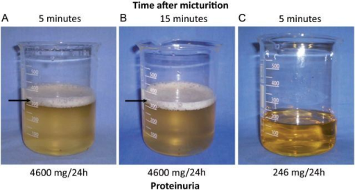 Prolonged foamy urine 5 minutes (A) and 15 minutes (B) after urinating directly into a beaker. Normal pattern (not foamy) urine after remission of the proteinuria (C).