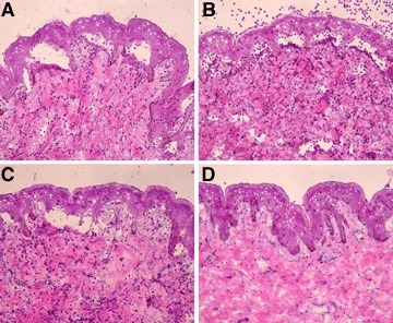 IgG4 autoantibodies induce dermal–epidermal separation in sections of human skin. Results of a representative experiment show that dermal–epidermal separation in sections of normal human skin is induced by serum (A), IgG1 (B) and IgG4 autoantibodies (C) from patient 1. Serum antibodies from a healthy control (D) do not induce sub-epidermal splits (all magnifications, ×200).