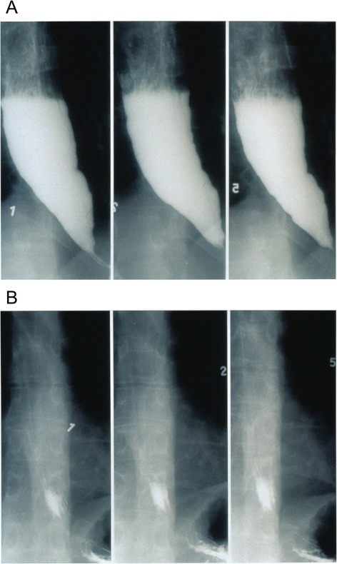 Timed barium swallow before and after pneumatic dilation showing retention of barium in the former and complete emptying post effective therapy in the latter