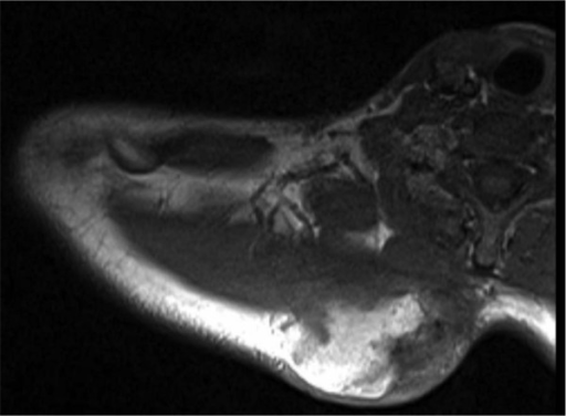 Soft tissue osteosarcoma in 2010, in the right cervicothoracic paraspinal musculature.