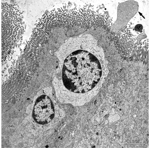 Ultrastructure of the epithelium in a pig that received DON + ZEN for six weeks. Note the drop-like protrusion (arrow) extending from the apical surface of enterocyte and numerous lymphocytes (L) between the epithelial cells.