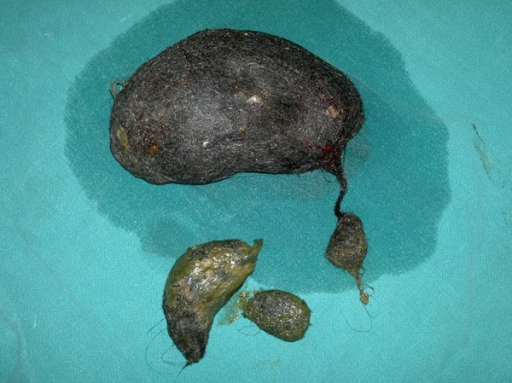Intraoperative photograph showing the gastric bezoar along the small bowel bezoarlets.