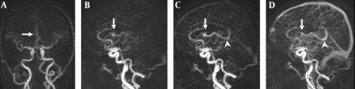A 47-year-old man with a small AVM in the right lateral ventricle. A, Coronal TR-MRA shows the right lateral ventricle AVM with a nidus (arrow) supplied by a branch of the right anterior cerebral artery; B, Sagittal early; C, Late arterial; D, Venous phase TR-MRA images show the nidus (arrow) in the right lateral ventricle. Deep venous drainage occurs via an internal cerebral vein (arrow head) in the straight sinus.
