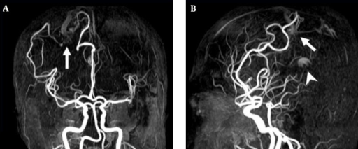 3D TOF MRA of the AVM shown in Figure 4. A, Coronal; B, Sagittal views also reveal a focal hyperintense nidus (arrow) in the right parietal region supplied by branches deriving from right anterior and middle cerebral arteries. However, the venous drainage cannot be confirmed due to lack of venous phase information. In addition, a high signal intensity (arrow head) resulting from flow artifacts of the great cerebral vein is visualized.