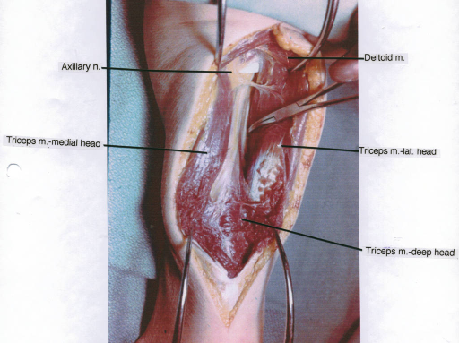 axillary nerve; triceps muscle; deltoid muscle | Open-i