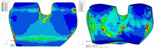 Comparison of stress distribution on bone surface for conventional and custom implant with loading and reaction force in center location. Maximum stresses are shown in red color at a level above 5 MPa. Green contour stress levels are 2.5 MPa.