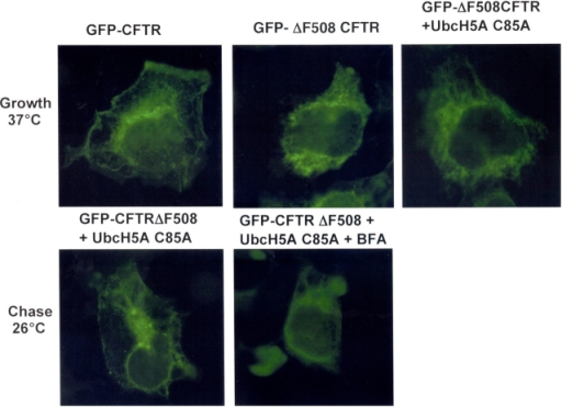 Localization of GFP–CFTRΔF508 in HEK293 cells. Cells grown on glass coverslips were transiently transfected with GFP–CFTR or GFP–CFTRΔF508 with or without UbcH5a C85A and cultured for 24 h at 37°C. Where indicated 25 μg/ml cyclohexamide and/or brefeldin A (10 μM) was added to culture media. After 4 h of culture at 26°C these cells were fixed and the coverslips were mounted on glass slides. Images were collected and processed as described in the Materials and methods section.