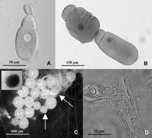 Life stages of Gregarina sp. infecting Romalea microptera grasshoppers. A. Fresh smear of trophozoite with epimerite; B. Gamonts on conjugation-stained with Heidenhain's iron haemotoxylin ; C. Gametocyst on sporulation (vertical arrow – unsporulated gametocyst, right arrow – coiled spores, inner picture – gametocyst showing sporoducts); D. Fresh spores