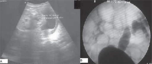 A) postnatal ultrasound shows unilateral hydronephrosis. B) Voiding cystourethrogram shows Rt. grade III and Lt. grade V vesicoureteric reflux.