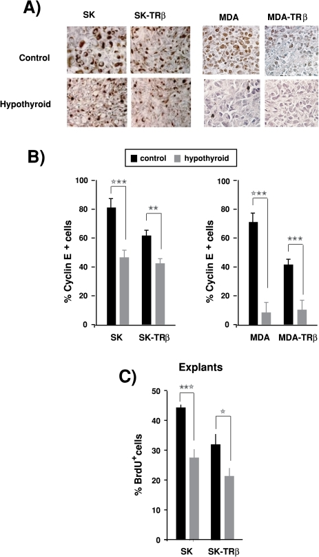 Hypothyroidism reduces Cyclin E expression and BrdU incorporation.(A)-Immunohistochemical staining for Cyclin E in biopsies from SK, SK-TRβ, MDA and MDA-TRβ tumors developed in control and hypothyroid nude mice. (B)-Quantification of the percentage of cells expressing Cyclin E in tumors of the different groups. (C)-BrdU incorporation was measured in explants from SK and SK-TRβ tumors resected after 25 days of inoculation in control and hypothyroid mice.