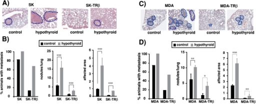 Hypothyroidism enhances formation of experimental lung metastasis.Control and hypothyroid mice were injected with parental and TRβ1-expressing cells into the tail vein and 30 days later lungs were excised mounted and stained. (A and C)-Representative images of lungs from mice injected with MDA, MDA-TRβ, SK and SK-TRβ cells. Metastasis are delineated with a discontinuous blue line. (B and D)-The percentage of animals bearing metastatic lesions, the number of lesions/lung, and the area of lung parenchyma affected (mean±S.E) were determined in the different groups.