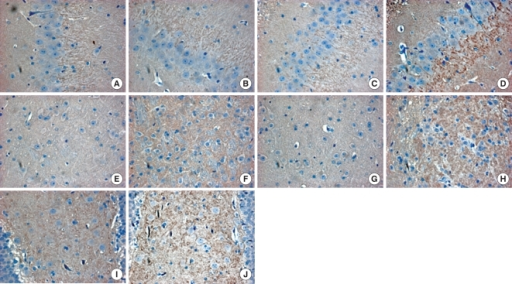 Synaptophysin expression by immunohistochemical staining. High-power views (×400) of the hippocampal dentate gyrus (A-D, I, J) and thalamus (E-H) show synaptophysin immunoreactivity in brown color. No definite differences are observed in the granule cell layer and subgranular zone of the contralateral hemisphere between the no exercise control (A) and Rota-rod training (B) groups. In the ischemic hemisphere, synaptophysin expression increases in the Rota-rod training group (D) compared to the control group (C). Synaptophysin immunoreactivity is higher in the thalamus of the Rota-rod training group (F, H) than in that of the control group (E, G), in particular, in the ischemic hemisphere (H). The images of the dentate hilus of the Rota-rod group (I, J) also show synaptophysin expression, particularly in the ischemic side (J).