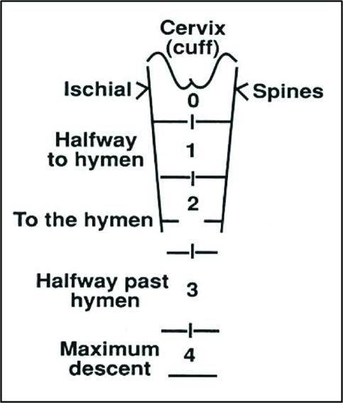 Baden–Walker half wa... Uterine Prolapse Grades