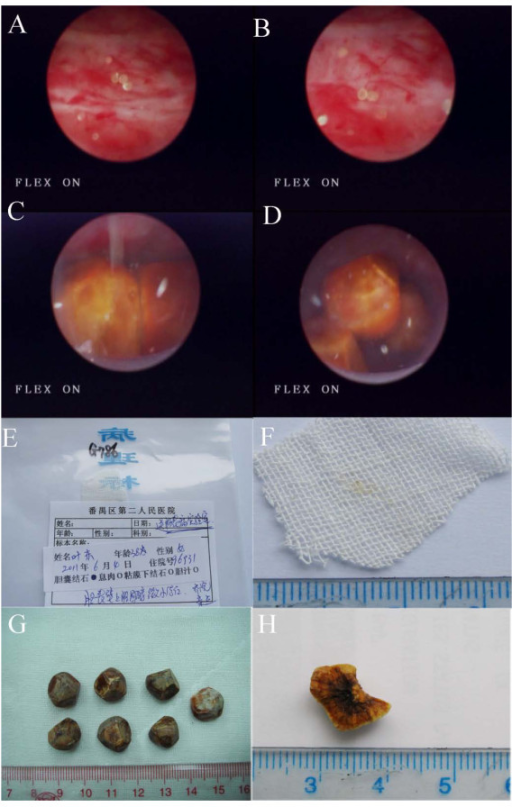 Endoscopic and gross appearance of the stones. (A,B) Small stones and purulent bile and (C,D) large stones and purulent bile under endoscopy. (E-H) Appearance of (E,F) small stones and (G,H) large stones with a radial, layered arrangement in profile.