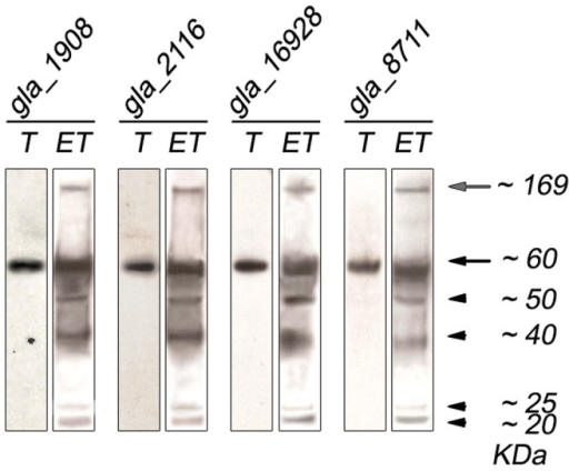 Analysis of palmitoylated proteins in dhhc transgenic growing and encysting parasites displays a similar pattern to wild type parasites.Giardia trophozoites (T) or encysting trophozoites (ET) were labeled with [3H]-palmitic acid and loaded onto SDS-PAGE. Samples were then analyzed by autoradiography. The approximate sizes are indicated on the right in kDa.