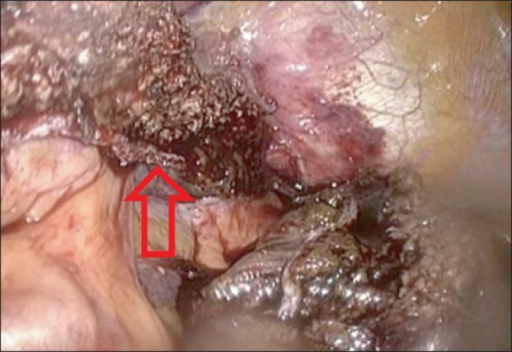 Postoperative finding of laparoscopic left lateral sectionectomy using an Endo-GIA (Ethicon Endo-Surgery Inc., Cincinnati, OH, USA) and a 60-mm white cartridge. Arrow: The staple line is always located at the lowermost portion of transected liver parenchyma.