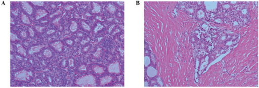 Microscopic view of the primary ovarian lesion. (A) Thyroid follicles of various size are densely proliferated. The follicular cells exhibit enlarged nuclei, chromatin condensation and nuclear stratification (hematoxylin and eosin [H&E] stain; magnification, ×200). (B) Vascular invasion is also apparent (H&E stain; magnification, ×100). The subsequent pathological diagnosis was malignant struma ovarii (thyroid type, follicular carcinoma).