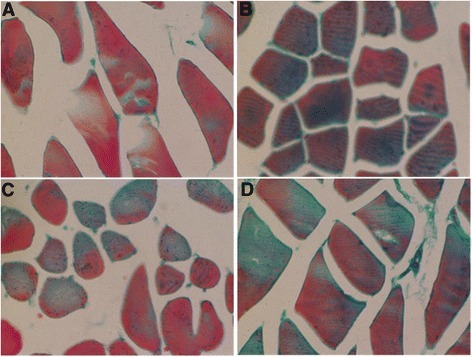 Morphological changes of the skeletal muscle in control rats and COPD model rats that were treated with vehicles, AICAR or resveratrol at week 20 (H & E stained). (A) Control rats; (B) COPD rats with vehicle; (C) COPD rats with AICAR treatment; and (D) COPD rats with resveratrol treatment. Amplification ×200.