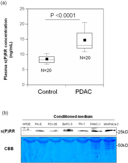 Plasma s(P)RR levels in patients with PDAC and amounts in the conditioned medium of human PDAC cell lines.(a) Plasma s(P)RR levels in 20 patients with PDAC and 20 healthy matched controls. Data are mean ± SD values. The boxes encompass the twenty-fifth through seventy-fifth percentiles of results. The lines through the middle of each box represent the medians. The maximum and minimum values within 1.5 × interquartile range (IQR) are shown as whisker caps. Average values are indicated by dots in the boxes. (b) s(P)RR in conditioned medium was assayed for HPDE cells and six different PDAC cell lines. Consistent results were observed when three experiments were repeated. Loading control was determined by CBB staining.