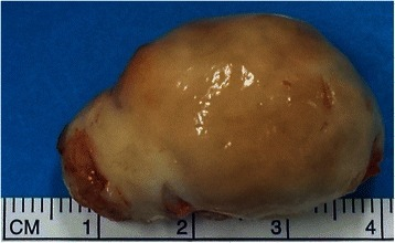 Excised tumour (4×3 cm) showing nodular grey white mass with variable consistency.