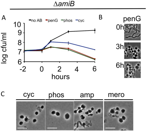 V. cholerae amiB is not required for sphere formation in response to inhibition of cell wall synthesis.(A-C) A V. cholerae ΔamiB mutant was treated as described in Fig 1 A-C. Scale bar = 5 μm. No AB = no antibiotic added.