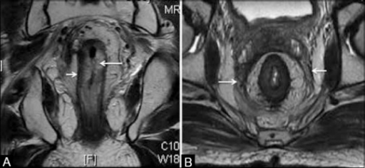 Post RT appearances. (A) Coronal T2W MRI shows thickened hyperintense submucosa due to edema (long arrow) with the intact muscularis (short arrow). (B) Axial T2W MRI with diffusely thickened mesorectal fascia (arrows)