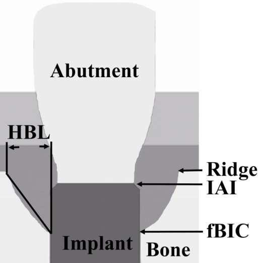 Schematic representation of the landmarks for the measured radiographic parameters.(1) Ridge; (2) IAI; (3) fBIC; (4) HBL.