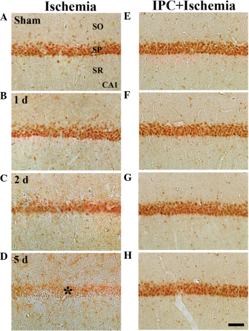 Immunohistochemistry to determine the expression of GK in the CA1 region of the (A–D) ischemia and (E–H) IPC + ischemia groups 1, 2 and 5 days following ischemia-reperfusion. GK immunoreactivity was readily detected in the SP in the sham group. GK immunoreactivity in the SP was decreased from 2 days post-ischemia, and GK immunoreactivity was markedly decreased (*) 5 days post-ischemia. However, in the IPC-operated sham- and IPC + ischemia-operated groups, GK immunoreactivity was markedly increased in the SP of CA1, and was maintained until 5 days post-ischemia. Scale bar=50 µm. GK, glucokinase; SP, stratum pyramidale; SO; stratum oriens, SR; stratum radiatum; IPC, ischemic preconditioning.