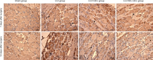 P2X3 receptor immunoreactivity in rat L4–5 dorsal root ganglia.Immunoreactive products of the P2X3 receptor (yellow-brown, arrows), observed mainly in the cytoplasm, 7 and 14 days after surgery. CCI group had the strongest staining, followed by CCI + OEC, CCI + MC-OEC, and sham groups. Scale bars: 50 μm. CCI: Chronic constriction injury; MC: microencapsulated; OEC: olfactory ensheathing cell.