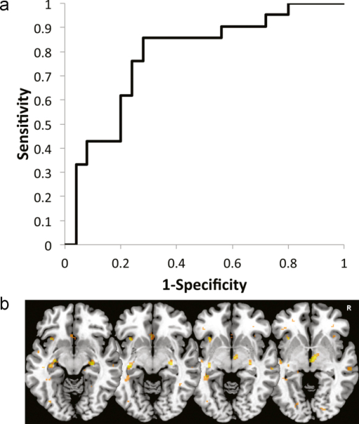 (a) Receiver Operator Characteristic (ROC) curve for the MLDA classifier's ability to distinguish MD from control images, based on the projected values (decision values). (b) Axial slices ventral to the corpus callosum display MLDA weight vector maps highlighting the voxels which were among the 1% most discriminative for MD patients vs. controls including the subgenual cingulate cortex, both hippocampi, the right thalamus and the anterior insulae.