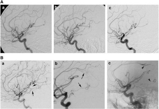 DSA images displayed the left ICA angioarchitecture from various examinations. Two micro AVMs, which were identified in the last examination (B-a–c), were not diagnosed in the first three DSA examinations (A-a–c). Arrows pointed at the feeding arteries of AVMs before embolization (B-a, b); and arrowheads showed the embolised feeding arteries after embolization (B-c)