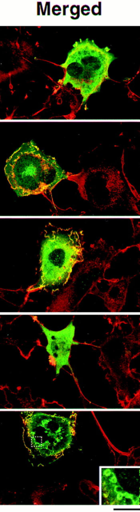 Confocal images of COS-7 cells expressing mutant Tiam1 proteins. Confocal laser scanning microscopic images of COS-7 cells  expressing C580 Tiam1 (A), MS-C580 Tiam1 (B), full-length Tiam1 (FL1591) (C), full-length Tiam1 with a deletion in the NH2-terminal PH  domain (FL-ΔPHn) (D), and FL-ΔPHn containing a Src myristoylation signal at the NH2 terminus (MS-FL-ΔPHn) (E). The insert in E is  a higher magnification of the framed region showing the vesicle-like structures that are surrounded by the MS-FL-ΔPHn Tiam1 protein.  Indicated in blue is the myristoylation signal from c-Src (MS), containing the NH2-terminal 20 amino acids. In the merged images, Tiam1  is shown in green and F-actin in red. Magnification is 200×. Bar, 40 μm.