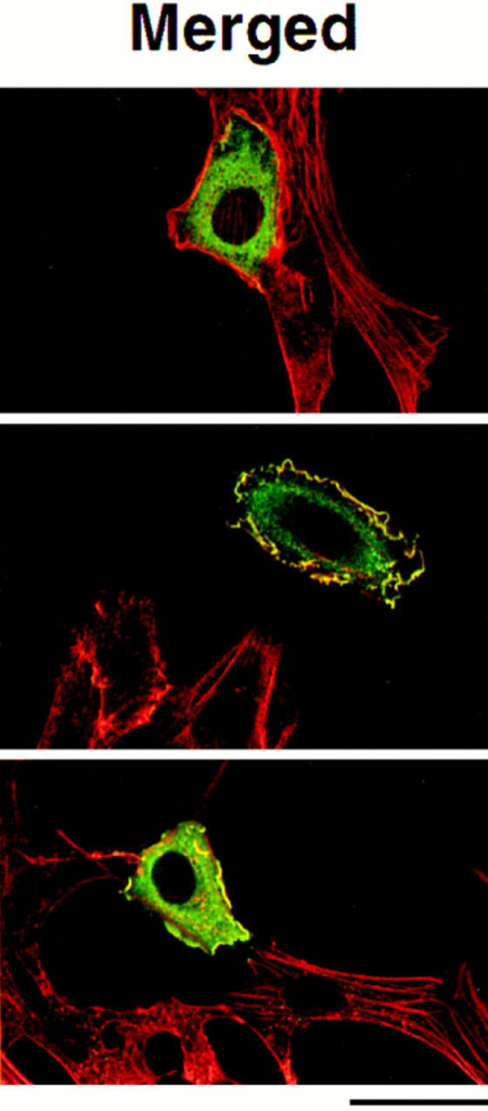 Serum-dependent localization of Tiam1. Confocal images of NIH3T3 cells expressing C1199 Tiam1 (A and B) or MS-C580  Tiam1 (C) proteins. Cells were serum starved for 24 h (A and C), followed by stimulation with serum for 2 h (B). In the merged pictures,  Tiam1 proteins are shown in green and F-actin in red. These optical sections were taken at the basal sites of the cells and reveal the presence of stress fibers in serum-starved NIH3T3 cells. Magnification is 300×. (D and E) Immuno-EM localization of C1199 Tiam1 after  serum starvation (D) or after readdition of serum for 2 h (E). In F, the distribution of gold particles in at least 40 cross sections of cells  were scored and presented as the percentage of cross sections with gold particles being predominantly at the membrane (M) or in the  cytoplasm (C). Bars: (A–C) 40 μm; (D and E) 400 nm.
