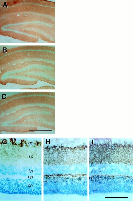 Localization of Thy-1 immunoreactivity in rat brain. (A–C) Localization of 7C8  immunoreactivity in the hippocampus. Sections of rat hippocampus were stained for  Thy-1 (A), SV2 (B), or synaptophysin (brown  HRP reaction product), and counterstained  with methylene green. In coronal sections of  the hippocampus, 7C8 immunoreactivity was  found throughout the synaptic fields, including the stratum oriens, stratum radiatum, and  the molecular layer of the dentate gyrus. In  contrast, there was nothing labeled with the  antibody in the pyramidal cell layer, stratum  lacunosum moleculare and granular layer of  the dentate gyrus. Both SV2 and synaptophysin immunoreactivities were similar to  that of Thy-1, and were distributed throughout the synaptic fields, but not in the cell  body layers. (D–F) Thy-1 copurifies with  large and small synaptic vesicles. The distribution of Thy-1 (D), SV2 (E), and synaptophysin (F) immunoreactivities were assayed  by dot blot after fractionation of membranes  by Sephacryl S-1000 column chromatography.  The three arrows indicate the positions of the  void volume of the column (V0), the elution  position of large, dense-core vesicles (LDV),  and the elution position of the small synaptic  vesicles (SSV). Data shown are the mean ±  range of duplicated determinations. (G–I)  Localization of 7C8 immunoreactivity in the  retina. Sections of rat retina were stained for  immunoreactivity to 7C8 and then counterstained with methylene green. The sections  are oriented with the photoreceptor layer at  the bottom. 7C8 immunoreactivity was prominently in the ganglion cell layer (gc) and  faintly in the inner plexiform layer (ip). In  contrast to SV2 (H), and synaptophysin (I),  7C8 immunoreactivity was largely absent  from the inner nuclear layer (in), outer plexiform layer (op), and outer nuclear layer (on).  Bars: (A–C) 500 μm; (G–I) 100 μm.