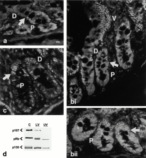 Developmental regulation of pocket protein expression and phosphorylation state in the intestinal epithelium in situ. (a–c) Immunofluorescence localization of pocket proteins. P, proliferation zone; D, differentiation zone; V, villus/functional zone. (a) p107 is readily detected in the nuclei of proliferating lower crypt cells (P). Coincident with growth arrest (arrow), p107 expression decreases to barely detectable levels. (bi and bii) pRb staining is evident in both nuclear and cytosolic compartments of proliferating crypt cells (P), and becomes predominantly nuclear in postmitotic cells of the upper crypt and villus (V). The arrow indicates the point of growth arrest. (c) p130 staining is low in proliferating crypt cells (P), but increases markedly coincident with growth arrest (arrow). (d) Whole cell lysates (30 μg protein) of isolated crypt (C), lower villus (LV), and upper villus (UV) cells were subjected to Western blot analysis for expression and migration/phosphorylation state of pocket proteins. Note that the crypt fraction includes some postmitotic cells of the upper crypt region. p130 form 3, which is only found in cycling cells, is only detected in the crypt fraction; the presence of forms 1 and 2 in this fraction reflects the postmitotic cells in this sample. Data are representative of at least three independent experiments. Bar, 10 μm.