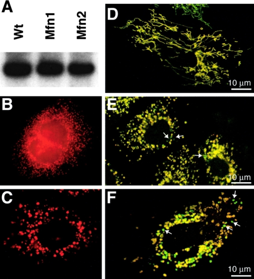 Stochastic loss of membrane potential in mitochondria of mutant cells. (A) mtDNA is detected by Southern blot analysis using a COX1 probe. (B and C) COXI expression in Mfn1 (B) and Mfn2 (C) mutant cells. (D–F) Staining of mitochondria using dyes sensitive to membrane potential. Wild-type (D), Mfn1 mutant (E), and Mfn2 mutant (F) cells expressing mitochondrially targeted EYFP (green) were stained with the dye MitoTracker Red, whose sequestration into mitochondria is sensitive to membrane potential. In these merged images, note that in the mutant cells (E and F) a subset of mitochondria (arrows) stain poorly with MitoTracker Red and thus appear green.