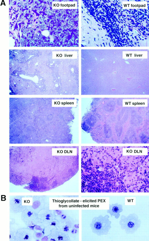 Microscopic examination of tissues from ICSBP mutant mice. (A) Histopathology of infected footpads, liver, spleen, and DLNs of ICSBP−/−  (KO) or ICSBP+/+ (WT) mice injected with L. major on day 49 after infection. Sections were stained with hematoxylin and eosin. The original magnification was 4 for liver, spleen, and left DLN panel; 40 for footpads and right DLN panel. Detailed description is given in the text. (B) Photomicrograph of  cytospin preparations of thioglycollate-induced peritoneal washout cells obtained from uninfected ICSBP−/− (KO) and ICSBP+/+ (WT) mice (Wright's-Giemsa stain; original magnification: 100).