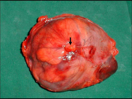 Specimen showing tumor covered with falciform ligament and the tied ligamentum teres which is indicated by bold arrow (posterior view).