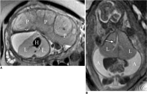 22-week-old fetus with congenital high airway obstruction sequence.A. Axial T2-weighted single shot fast spin echo image shows marked placentomegaly (P). Note that fetus has centrally positioned and compressed heart (H), and large lung volumes (L).B. Coronal T2-weighted single shot fast spin echo image shows markedly enlarged lung volumes (L) and increase in lung signal, marked ascites (A), and dilated airway (arrow). Note inverted diaphragms.