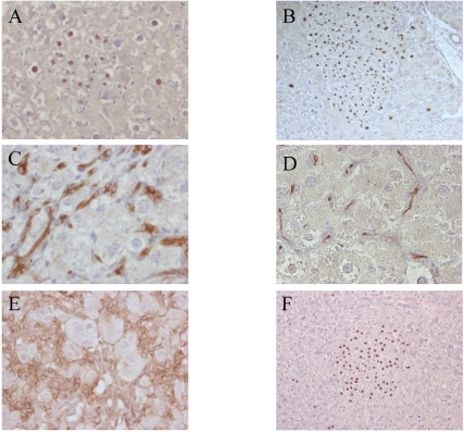 Histological analysis of retrorsin and 2-AAF treated rat liver after genetic labeling of mature hepatocytes in adult animals.Retrorsin model. (A) β-galactosidase positive cells gathered in clusters of small hepatocyte day 15. (B) same clusters at day 30 post hepatectomy. 2-AAF model. Immunohistochemical detection of CKs (C), GGT (D), and β-catenin (E) expressed by oval cells. (F) Clusters of β-galactosidase positive hepatocyte observed in the 2-AAF model. All sections are hematoxylin counterstained. All magnifications: ×400 except ×200 B and F.
