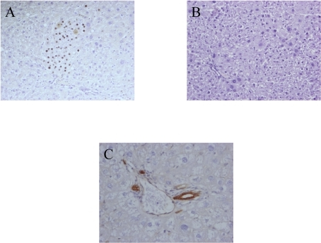 Histological analysis of the retrorsin model after genetic labeling of liver cells in newborn rats.Retrorsin model. (A) Cluster of SHPCs positive for β-galactosidase. (B) Hematoxylin and eosin staining showing large number of merging clusters 30 days post hepatectomy. (C) Immunohistochemical detection of CKs day 30 post hepatectomy. Oval cells are not detected. Hematoxylin counterstain. Magnification: ×200 A–B: ×400 C.